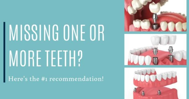 Missing one or more teeth? Here's the #1 recommendation!